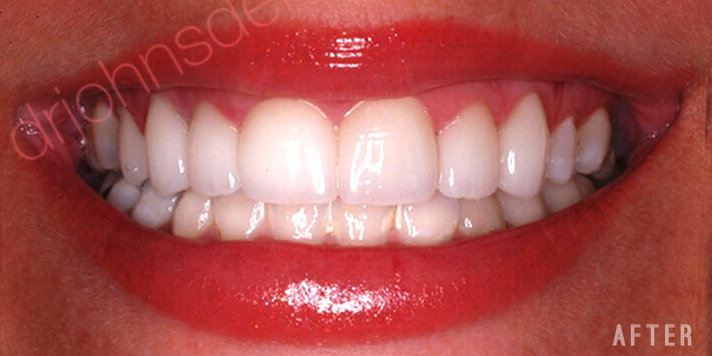 Dr-Johns-Dentistry-Services-IPS Express-Veneers