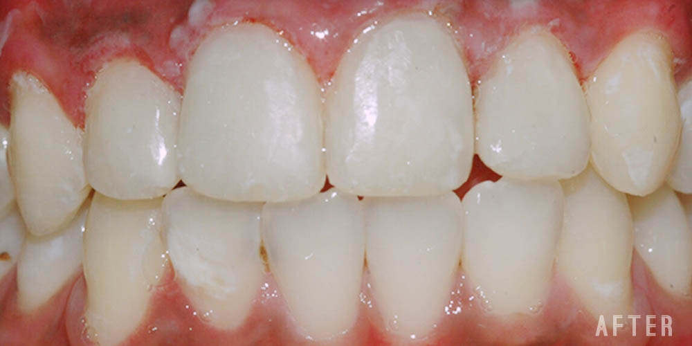 Dr-Johns-Dentistry-Services-Invisible-restoration